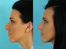 rhinoplasty pictures plastic surgery chicago il