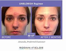 17 best images about rodan and fields unblemish before and