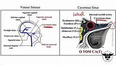 Cavernous Sinus Thrombosis 238 Cavernous Sinus Thrombosis Mucor Rhizopus Usmle