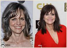 sally field plastic surgery before and after facelift pic