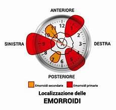 immagini emorroidi interne emorroidi interne ed esterne cura sintomi cause rimedi