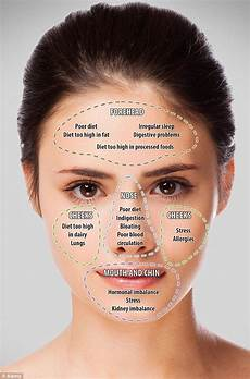 Chinese Acne Face Chart Face Mapping Your Acne And What It Means On Your Face