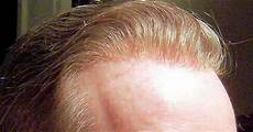 Hair System Light Density Hair Replacement System Solutions European Hair Usd 160