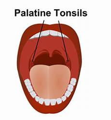 Palatine Tonsils Palatine Tonsil Anatomy Functions Location And Pictures