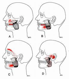 Masseter The Trigger Point Amp Referred Guide