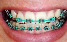 Light Blue Braces Power Chain Blue Power Chain On Traditional Metal Braces Traditional