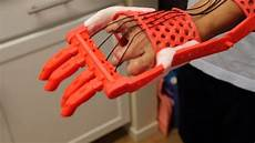 3d Printed Prosthetic Hand Design Testing A 3d Printed Prosthetic Hand Youtube