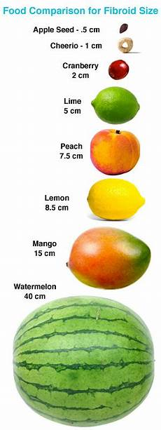 Fibroid Sizes Chart Comparing Fibroids With Fruits Hysterectomy Forum