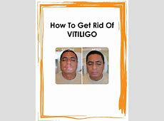 Natural Vitiligo Treatment System PDF / eBook Free