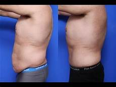 mini tummy tuck before and after kirkland wa dr