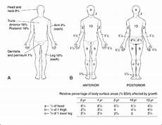 Burn Chart Body Burn Notice Blog Edition Diagnosis Classification Of Burns