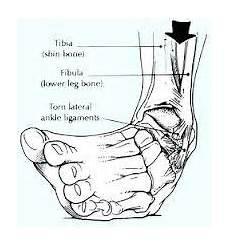 interno caviglia la distorsione di caviglia trattamento forumsalute it