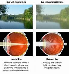 Lights With Cataracts Cataract Surgery Bathurst Central West Mudgee Lithgow Blue