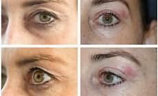 plasma pen eye1