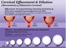 Centimeters Dilated Chart The Little Blueberry 3 Cm Dilated And 80 Effaced