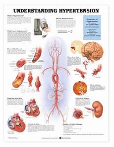Understanding Blood Pressure Chart Hypertension Chart High Blood Pressure Poster 9781587794223