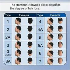 Diagnose Your Hair Loss Measure Norwood Scale Chart