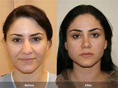 before after rhinoplasty 3 nose surgeon orange county