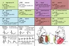 Ecg Placement Chart Nursing Student Medication Cheat Sheets 12 Lead Ecg