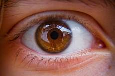 How To Get Light Brown Eyes Fast Light Brown Eyes Why You Should See An Eye Doctor