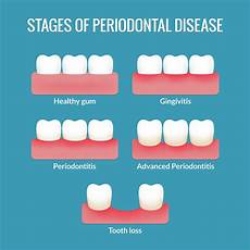 Gum Chart What Is Gum Disease Dr Bruno Silva Explains Dental