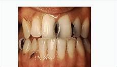 Dental Caries Dental Caries Teeth Decay Download Scientific Diagram