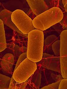 Archaea Examples Gut Microbiome Archaea May Influence Childhood Asthma Risk