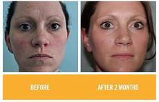 do rodan and fields products really work