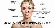 Chinese Acne Face Chart Acne Reveals Body Issues Chinese Face Map Magical