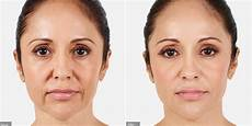 dermal fillers treatments la visage aesthetic clinic