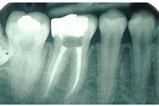 Root Canal Filling Material How Is A Root Canal Filling Performed