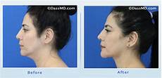 beverly chin liposuction results before and after