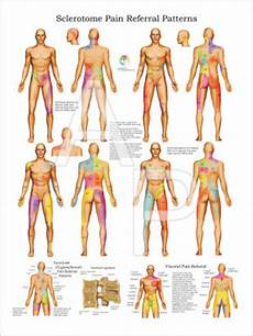 Referred Back Chart Dermatome Poster 18 X 24