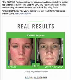 406 best images about rodan and fields soothe before and