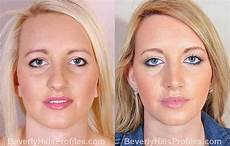 rhinoplasty before after photos beverly la