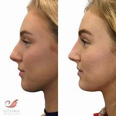 nose dermal filler with a doctor non surgical