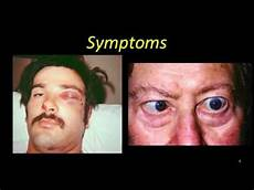 Cavernous Sinus Thrombosis Cavernous Sinus Thrombosis Youtube