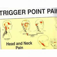 Travell Trigger Point Chart Trigger Point Patterns Chart Travell Simons Wall Charts