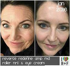 rodan fields skincare review with free mini