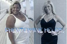 phentermine can help those undergoing gastric bypass surgery