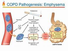 Respiratory Disease Fact Chart Quizlet Image Result For Copd Pathophysiology Copd Chronic