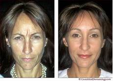 liquid facelift before and after pics skin disorders