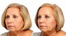 liquid facelift santa rosa cosmetic medicine artemedica