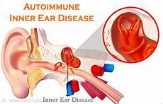 Autoimmune Inner Ear Disease Causes Symptoms Diagnosis