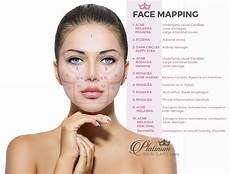 Chinese Acne Face Chart Face Mapping To Solve Skin Issues Platinum Skin Care