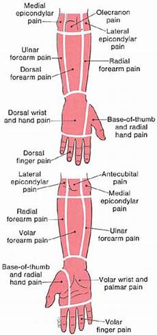 Arm Diagnosis Chart Forearm Amp Hand The Trigger Point Amp Referred Guide