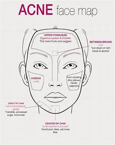 Chinese Acne Face Chart Face Mapping For Acne The Ultimate Guide