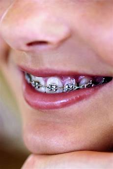 Brackets For Braces How To Make Brackets For Fake Braces Ehow