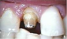 Lost Prosthetic Crown