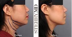 the selfie chin solution neck liposuction plastic